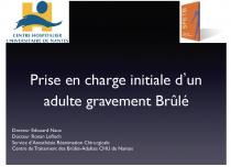 brule-1.png